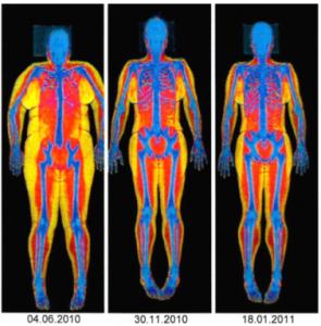 Rentgenový snímek úspěšně zhubnuté pacientky. Foto: Archiv Výzkumného obezitologického centra Lékařské fakulty Ostravské univerzity.